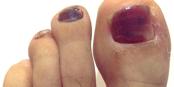 La uña encarnada sobre el pulgar del pie el tratamiento en ufe