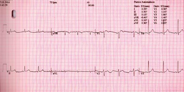 Electrocardiograma prueba de esfuerzo